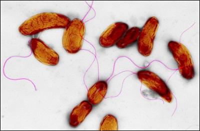I batteri dell'oceano potrebbero infettare frutti di mare e causare gravi malattie che costano milioni di euro investiti nella sanità.