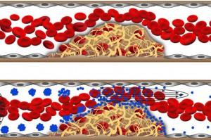 Le nanotecnologie in soccorso per malattie come ictus,infarto ed embolia polmonare