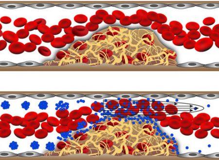 Le nanotecnologie possono aiutare a curare l'ictus, l'infarto e l'embolia polmonare – da StumbleUpon