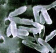 Ralstonia eutropha per produrre combustibile