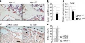 Gli stadi di evoluzione della proteina Nell-1 per curare l'osteoporosi